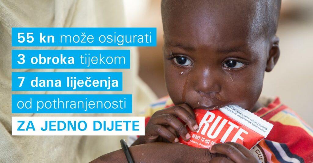 Pothranjeno dijete, Nigerija - preview