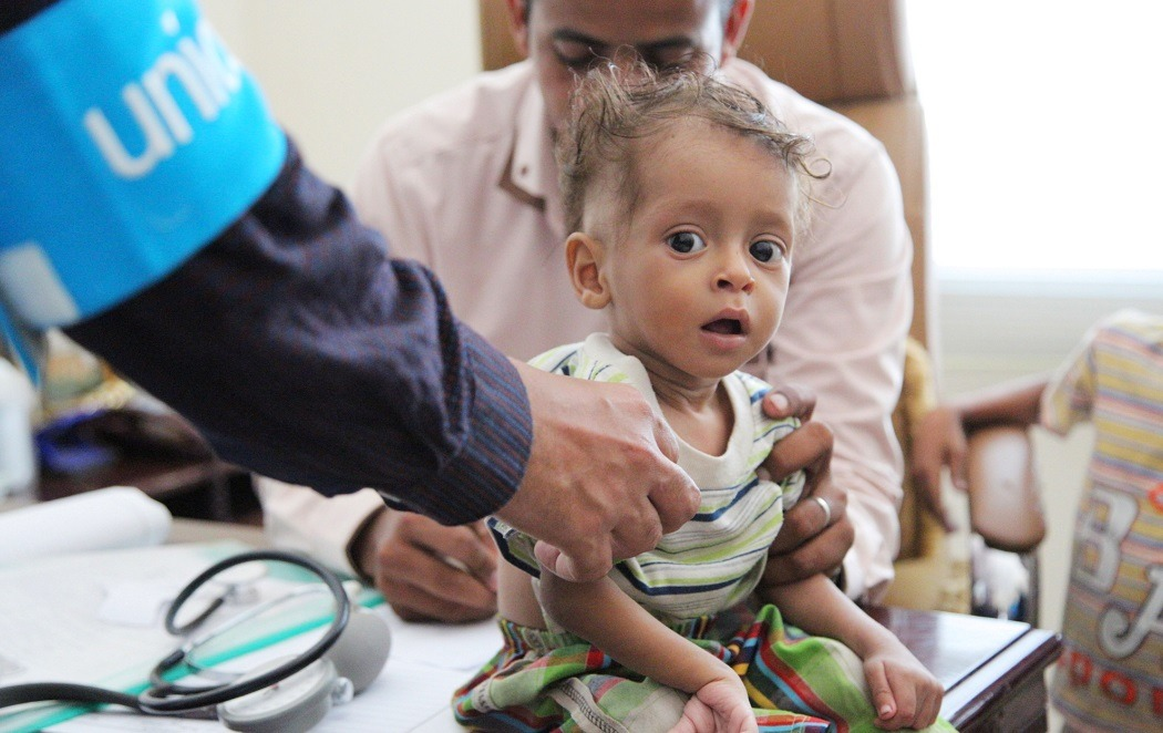360 tisuća djece u Jemenu životno ugroženo zbog pothranjenosti